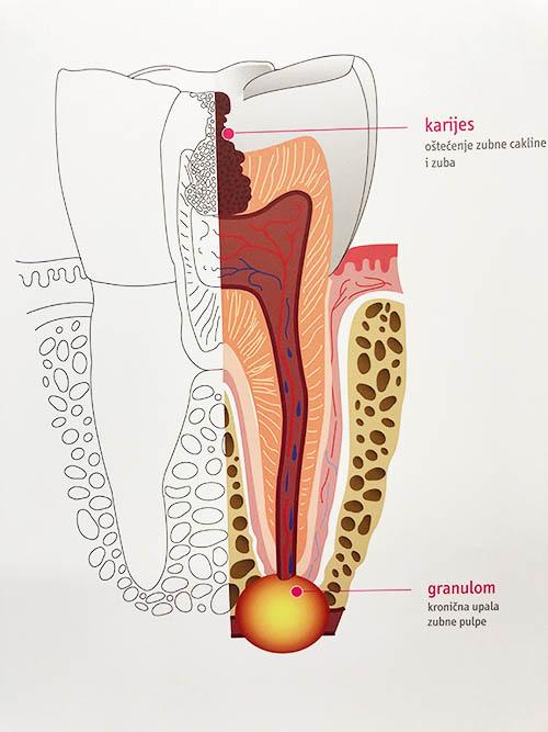 dentalna-endodoncija-pula