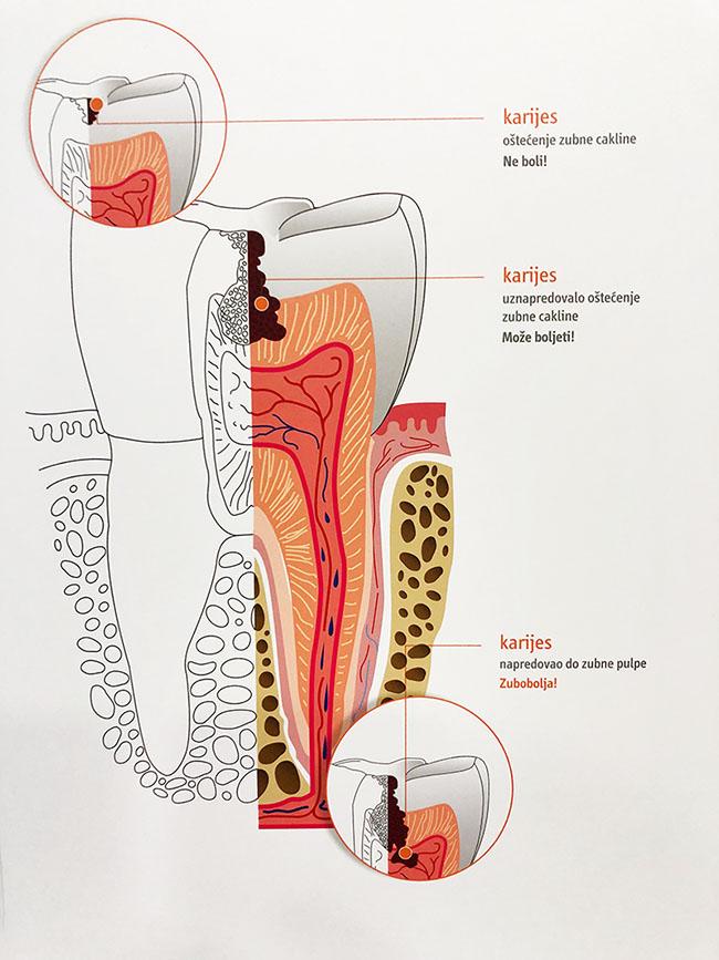 dentalna-konzervativa-pula