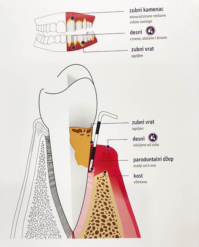 dentalna-paradontologija-pula