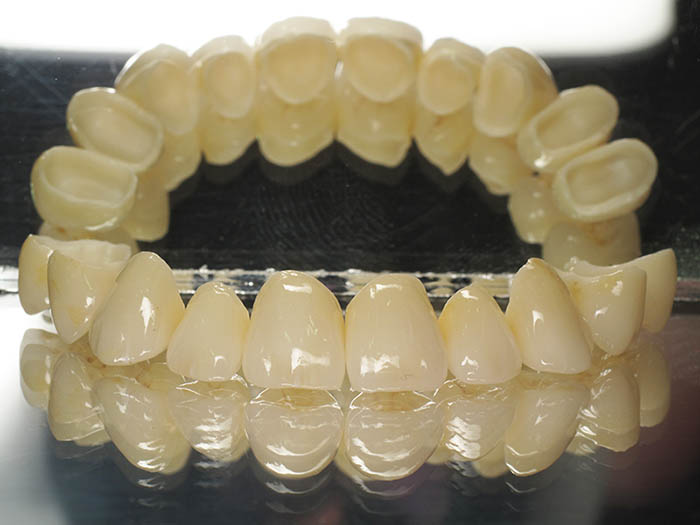 dentalna-protetika-pula